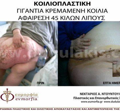 Κοιλιοπλαστικη: Αφαίρεση 45 κιλών λίπους